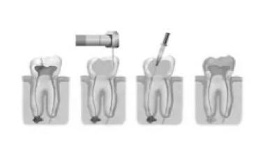 Endodoncia convencional y rotatoria