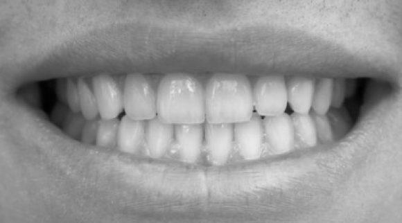 Odontología estética (oral y peribucal)